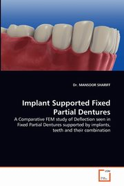 ksiazka tytuł: Implant Supported Fixed Partial Dentures autor: Shariff Mansoor